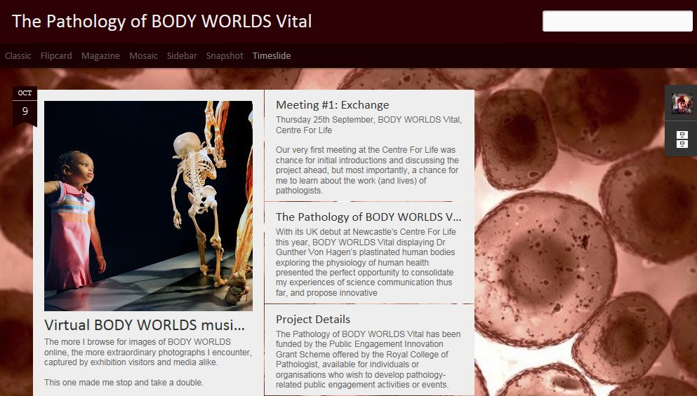 The Pathology of BODY WORLDS Vital_Collaborative Project_November 2014